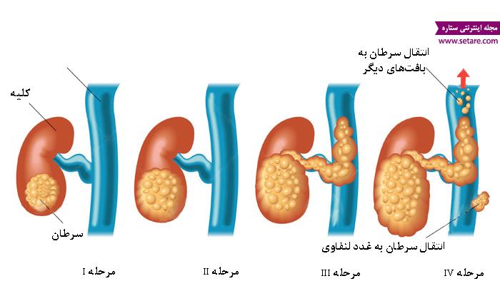 درمان سرطان کلیه - علائم سرطان کلیه - مراحل سرطان کلیه