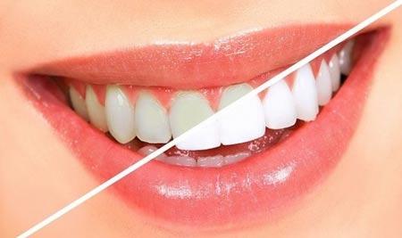 روش های خانگی سفید کردن دندان و رفع زردی و سیاهی اثر چای و قهوه